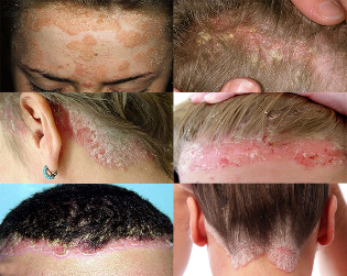 the treatment of psoriasis