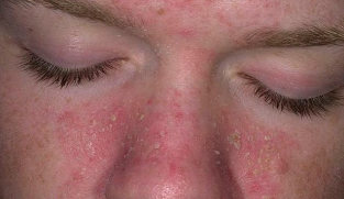 Psoriasis on the face
