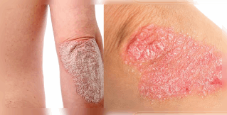 the treatment of psoriasis in the fastest way