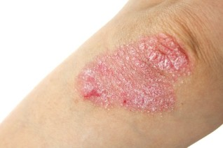 the appearance of psoriasis